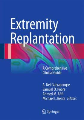 Extremity Replantation - A comprehensive Clinical Guide