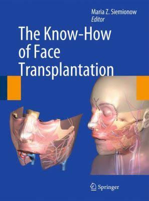 The Know how of face transplantation